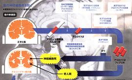 アルツハイマー発症機序図.jpg